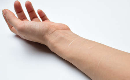 primo piano della mano femminile con cicatrici sulle vene