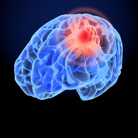 Headache X-Ray 3D model. Brain neurons synapse, anatomy body. Medical illustration of disease, head pain.  写真素材