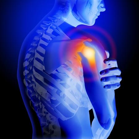 어깨 통증. 해골과 몸의 X 선. 남자의 해부학 몸. 3d 의료 일러스트 레이 션. 스톡 콘텐츠