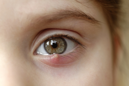 Close-up of a childs eye stye. Ophthalmic hordeolum disease.