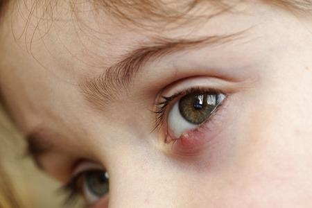 Close-up van de oogstront van een kind. Oftalmische hordeolumziekte. Stockfoto