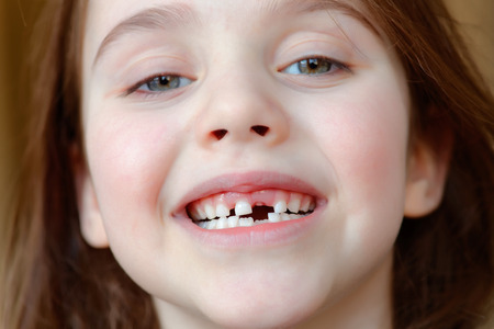The adorable girl smiles with the fall of the first baby teeth 스톡 콘텐츠