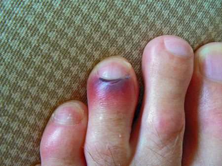 bruised: Black and red bruised toe next to the nail