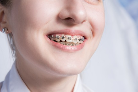 Young woman with teeth braces