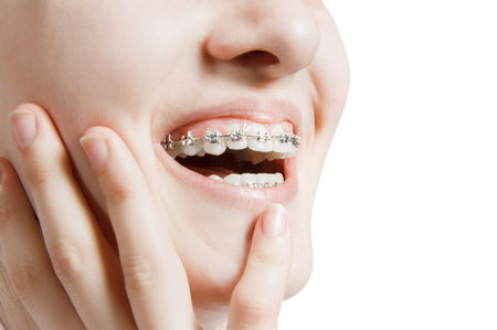 Beautiful young woman with teeth braces 스톡 콘텐츠