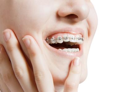 Beautiful young woman with teeth braces Foto de archivo