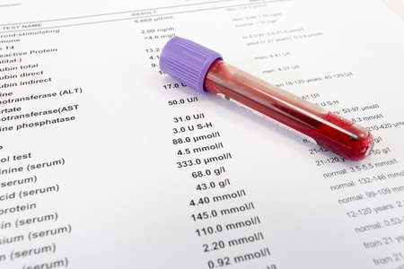 Red blood in test tube on white blank with results in colums. The results are written in English. Stockfoto