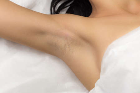 hair studio: Underarm girl client after the procedure, laser hair removal in professional beauty studio. Client in white towel lies on the couch. Stock Photo
