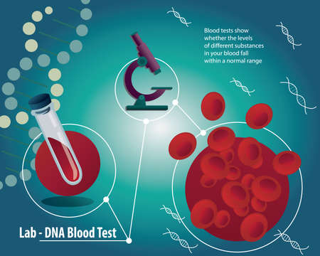 erythrocytes: Blood test poster with medical laboratory equipment. Erythrocytes in the blood or RBCs for blood analises with microscope, DNA on blue background