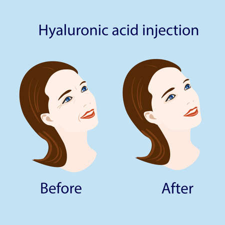 aging face: hyaluronic acid injection.