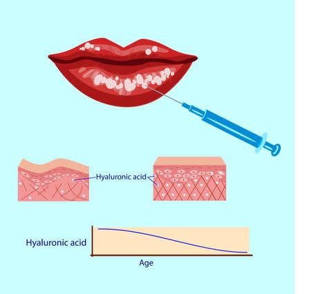 hyaluronic acid injection,lips procedure vector illustration, diagram Vektoros illusztráció