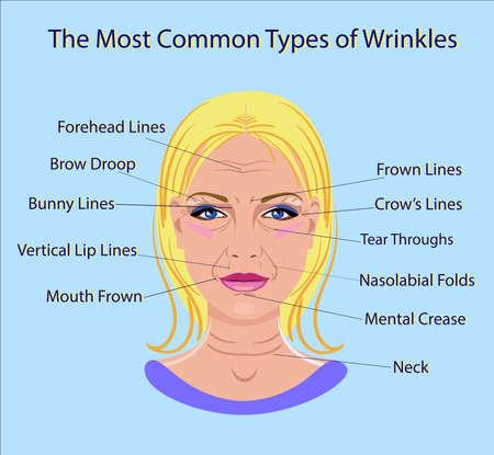 Typowe rodzaje zmarszczek twarzy.