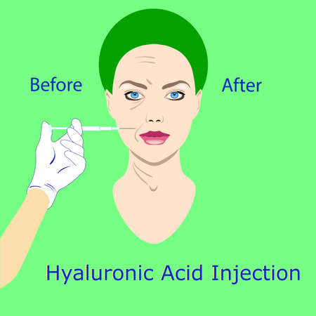 hyaluronic acid injection, before and affect , vector illustration,