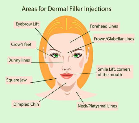 gebieden voor verjonging cosmetologische injecties, vectorillustratie voor salons