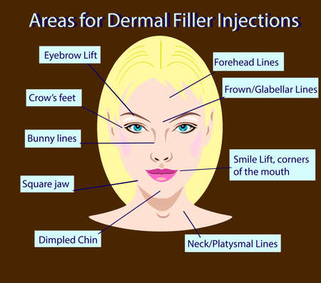 areas for rejuvenation cosmetological injections, illustration for salons