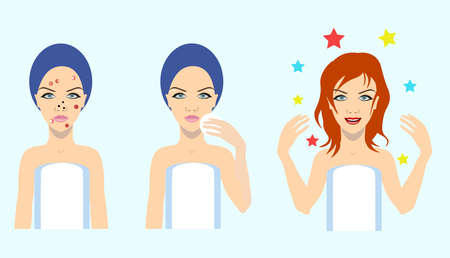 Acne treatment before after, vector illustration Illustration