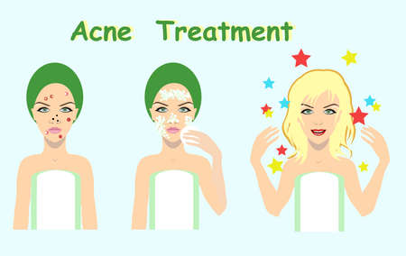 Acne treatment before after, skin problem solution,vector illustration for cosmetic salons