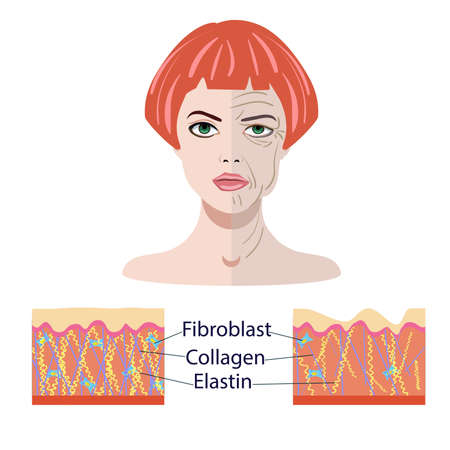 Vector face and two types of skin - aged and young for medical and cosmetological illustrations isolated  イラスト・ベクター素材