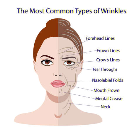 Common Types of Facial Wrinkles. cosmetic surgery. woman facial treatment isolated