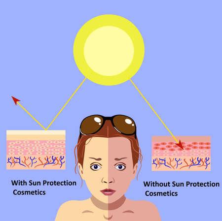Ilustração vetorial sobre o perigo do esquema de pele ultravioleta, com e sem cosméticos de proteção solar Ilustración de vector