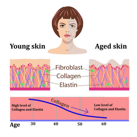 Vector faces and two types of skin - aged and young for medical and cosmetological illustrations isolated Ilustração