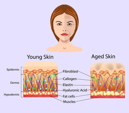 Twarz dziewczyny wektorowej i schemat ze schematami dwóch rodzajów skóry, dla ilustracji kosmetologicznych i zdrowotnych Ilustracje wektorowe