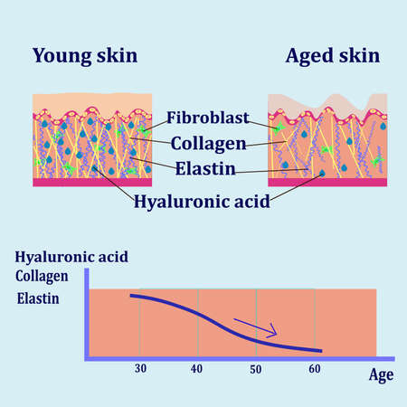 Vector diagram with schemes of two types of skin, for cosmetological and healthcare illustrations Illustration