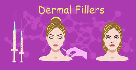 Vector illustration with dermal filler process on the purple background with face of a woman and injections Çizim