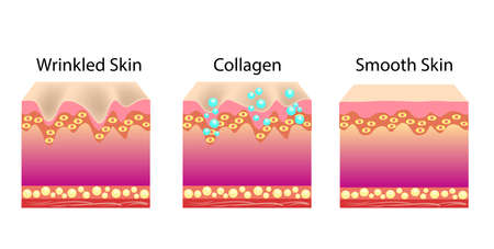 Vector illustration with process of getting skin skin younger with help of collagen Stock Illustratie