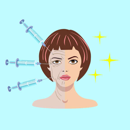 Vector illustration with dermal filler process on the blue background with womans face and injection