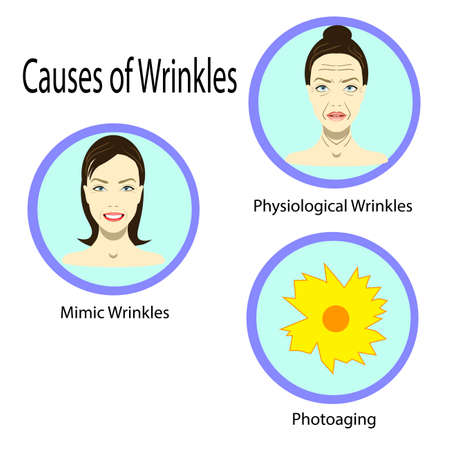 Causes of aging, vector illustration reasons of aging, types of wrinkles on the white background