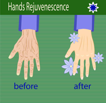 Hands care, before after effect, vector illustration for cosmetology