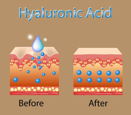 Illustrazione vettoriale con processo di ottenere la pelle più giovane con l'aiuto di acido ialuronico