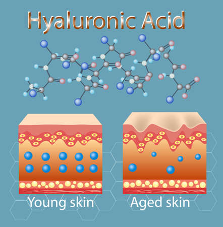 Vector illustration with process of getting skin old because of lack of hyaluronic acid