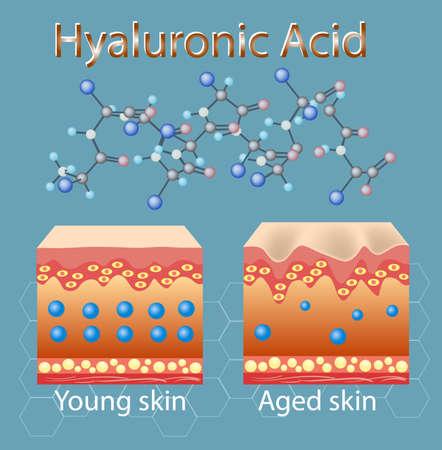 ヒアルロン酸不足で肌を老ける過程を用いたベクターイラスト