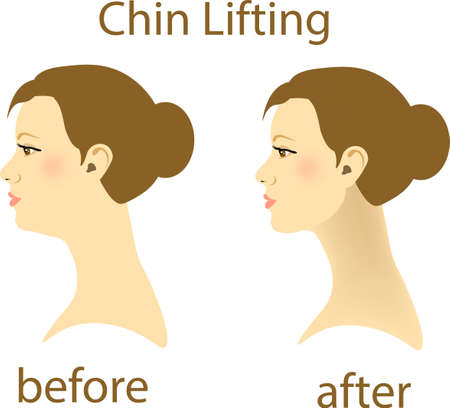Illustration of a woman with a double chin and a normal chin surgery, vector illustration