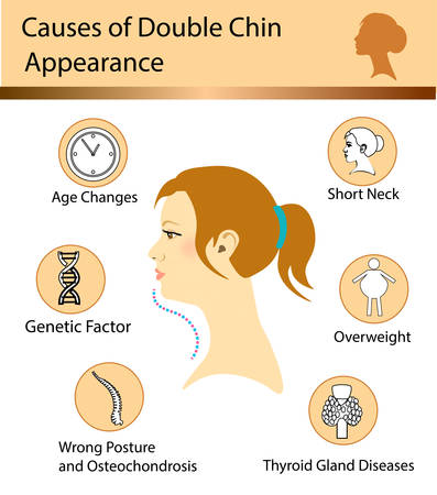 Causes of double chin