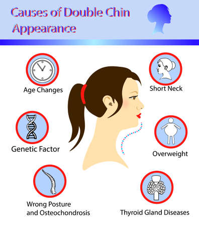 Causes of double chin, vector illustration diagram