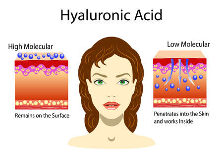 Vector illustration with Hyaluronic acid in skin-care products. Low molecular and High molecular and portret of girl