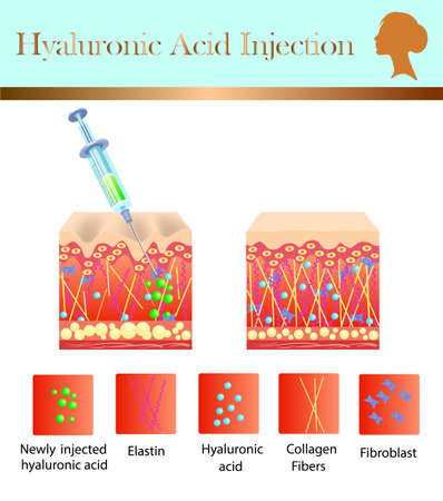 Hyaluronic acid injection template design