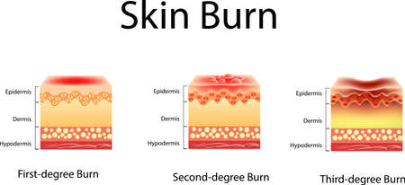 Three degrees of burns.