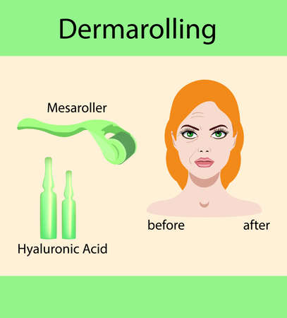 Vector illustration, derma mesorolling and before after effect Illustration