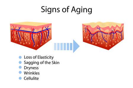 老化の徴候を伴うベクター図、2種類の皮膚、宇宙論的およびヘルスケアのイラスト 写真素材 - 103429225