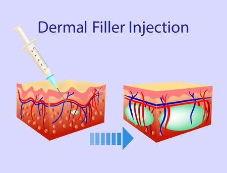 Vector illustration with cosmetic filler or Dermal fillers on blue background Illustration