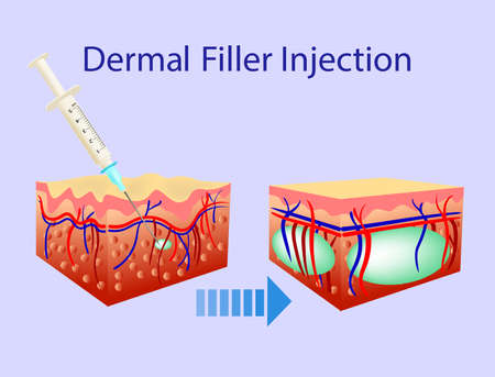 Vector illustration with cosmetic filler or Dermal fillers on blue background