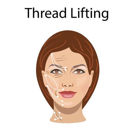 Lifting nici, ilustracja wektorowa, przed efektem