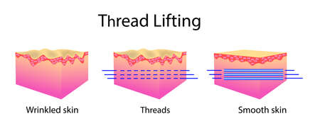 Thread lifting, vector illustration and skin cells, before after effect isoalted