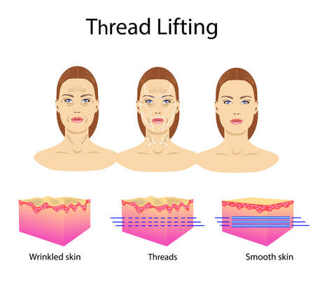 Thread lifting, vector illustration, face of a girl