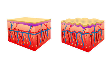 Vector Illustration of two types of skin showing cellulite, isolated