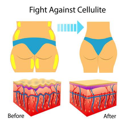 Ilustración vectorial de dos tipos de piel que muestran celulitis, aislada